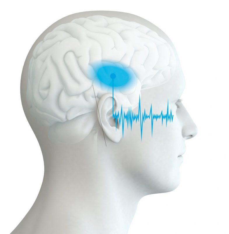 AIST87 JNA 2018 Conduit auditif-diffusion bruit
